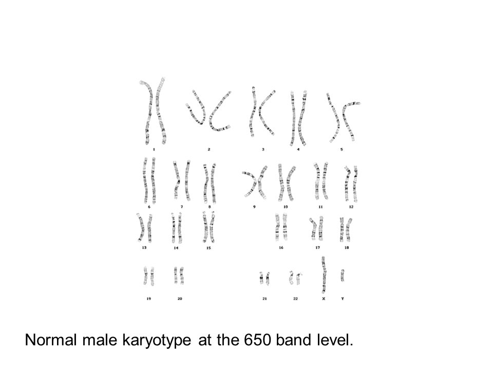 Normal male karyotype at the 650 band level.