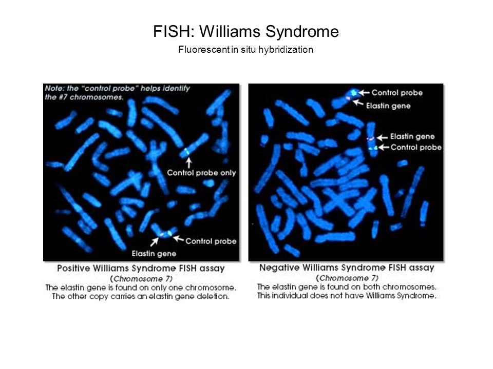 FISH: Williams Syndrome Fluorescent in situ hybridization