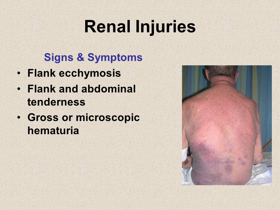 Renal Injuries Signs & Symptoms Flank ecchymosis Flank and abdominal tenderness Gross or microscopic hematuria