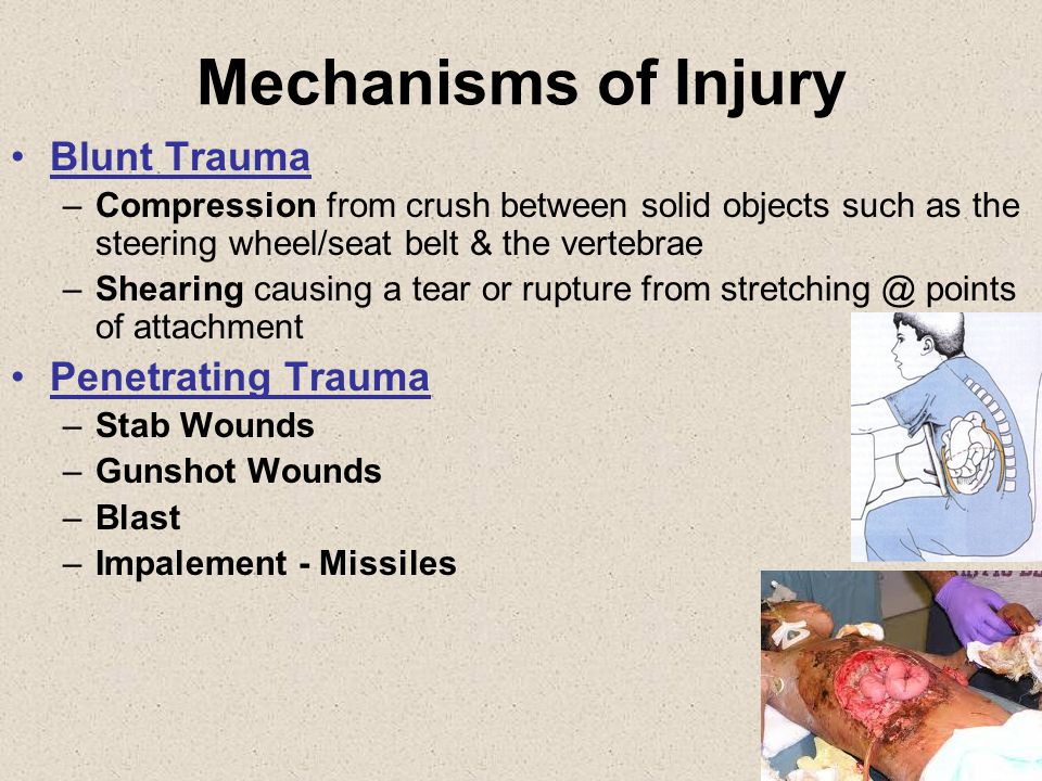 Abdominal Hollow Organ Injuries Pathophysiology Small bowel is the most frequently injured Blunt trauma - Seatbelt injuries from misuse or deceleration injuries –Crush, burst, penetration – Early –Ischemia or perforation – Late –High risk of infection Penetrating trauma – GSW, stab wounds, explosions with shrapnel