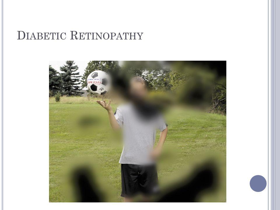 D IABETIC R ETINOPATHY