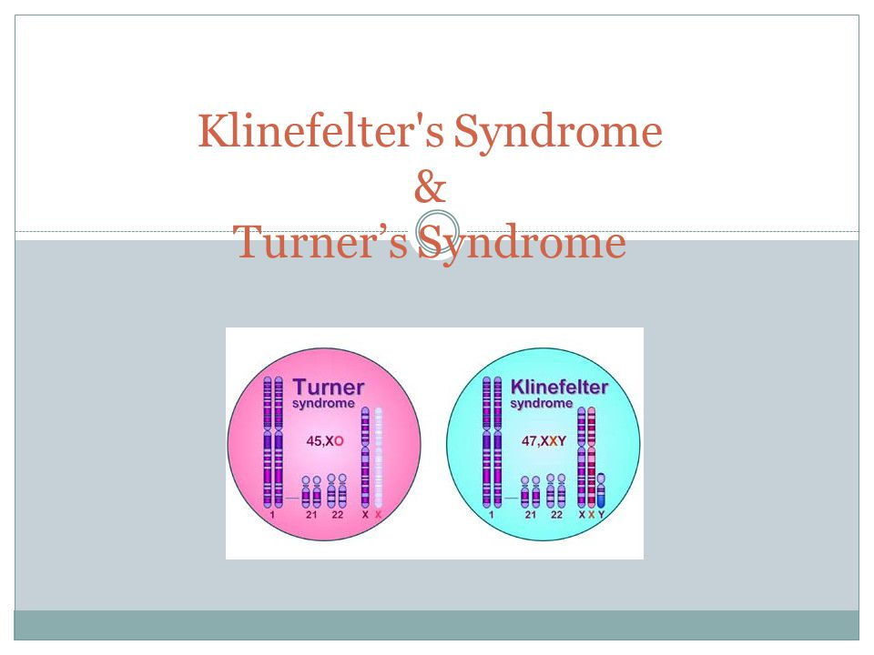 Klinefelter s Syndrome & Turner's Syndrome