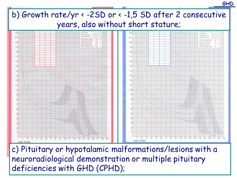 b) Growth rate/yr < -2SD or < -1,5 SD after 2 consecutive years, also without short stature; c) Pituitary or hypotalamic malformations/lesions with a