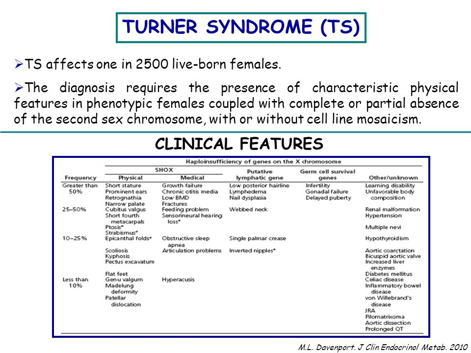 SHORT STATURE Short stature is the most common clinical feature of TS.