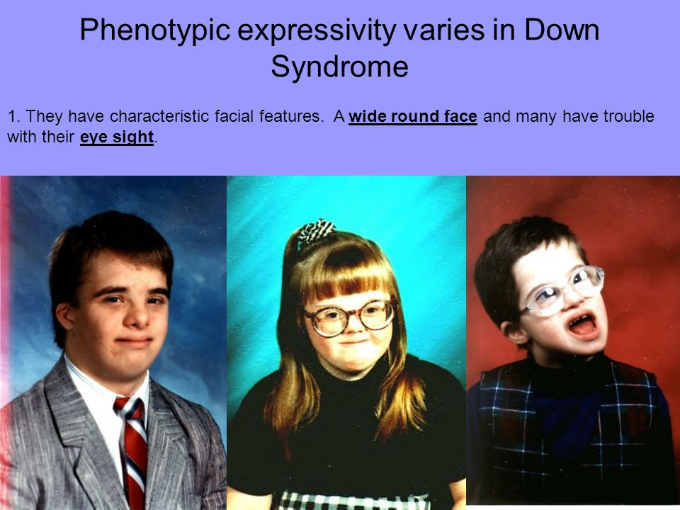 Phenotypic expressivity varies in Down Syndrome 1. They have characteristic facial features. A wide round face and many have trouble with their eye si