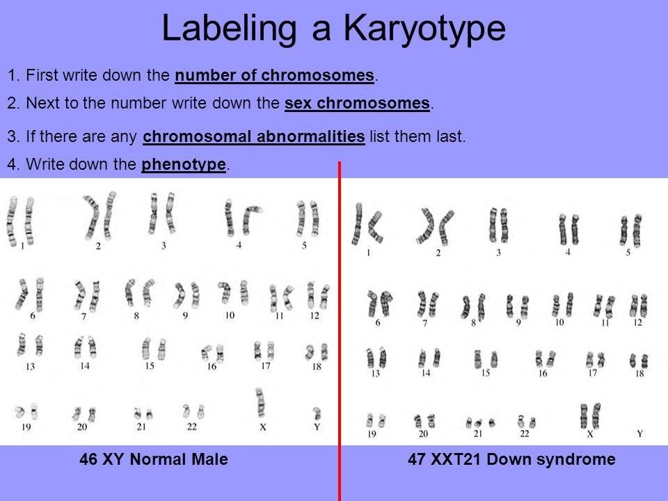 Labeling a Karyotype 1. First write down the number of chromosomes. 2. Next to the number write down the sex chromosomes. 3. If there are any chromoso