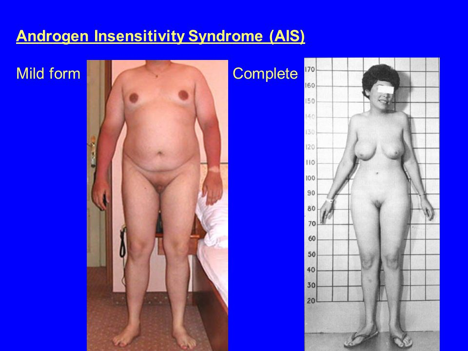 Androgen Insensitivity Syndrome (AIS) Mild form Complete