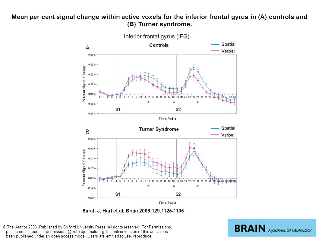 Mean per cent signal change within active voxels for the inferior frontal gyrus in (A) controls and (B) Turner syndrome. Sarah J. Hart et al. Brain 20