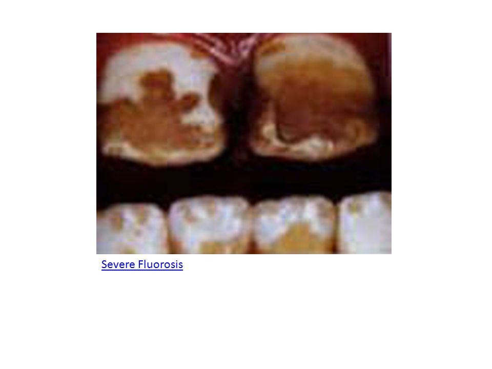 Severe Fluorosis