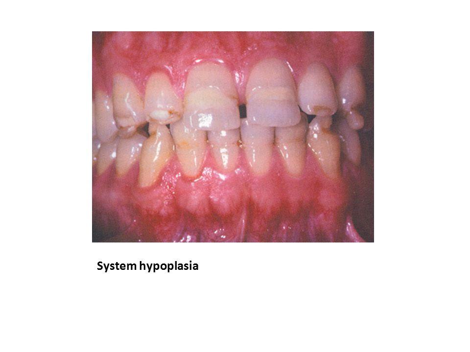 System hypoplasia