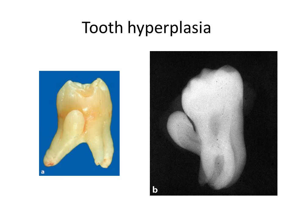 Tooth hyperplasia