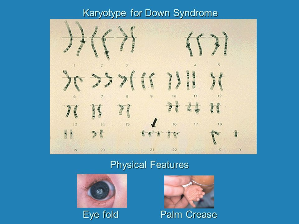 Karyotype for Down Syndrome Eye fold Palm Crease Physical Features