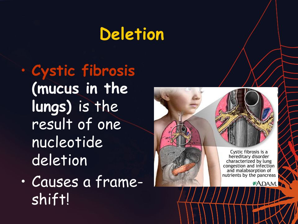 Deletion Cystic fibrosis (mucus in the lungs) is the result of one nucleotide deletion Causes a frame- shift!