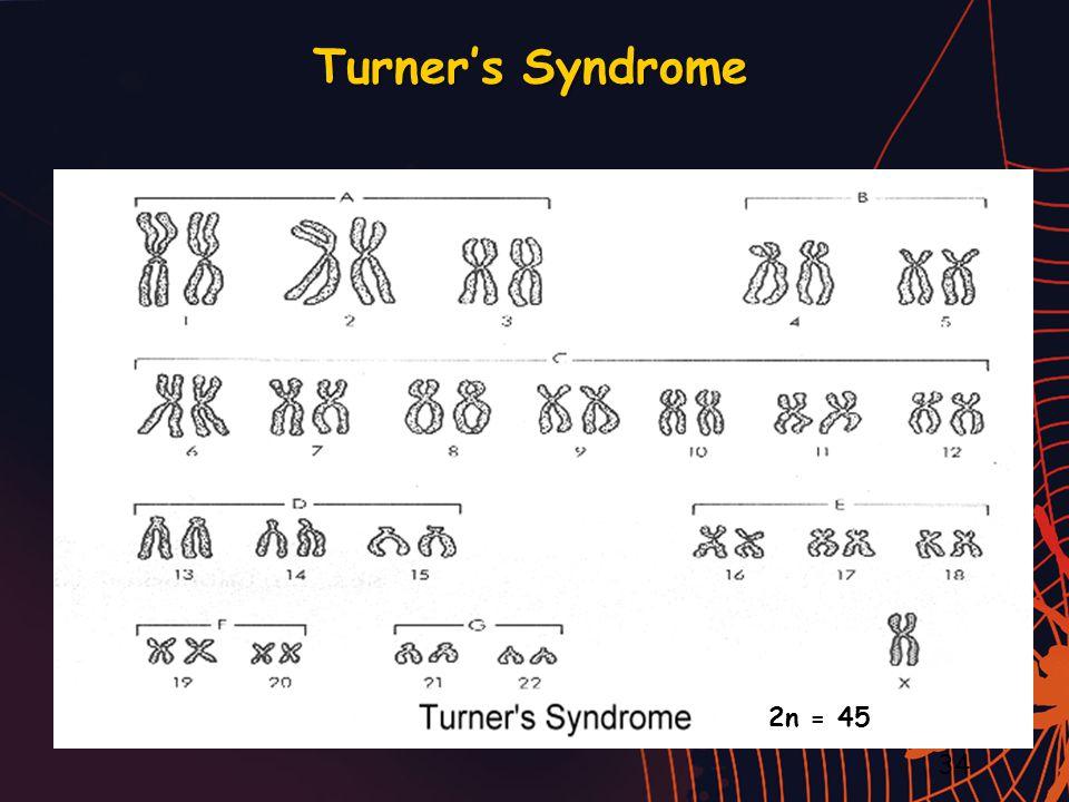 Turner's Syndrome 34 2n = 45