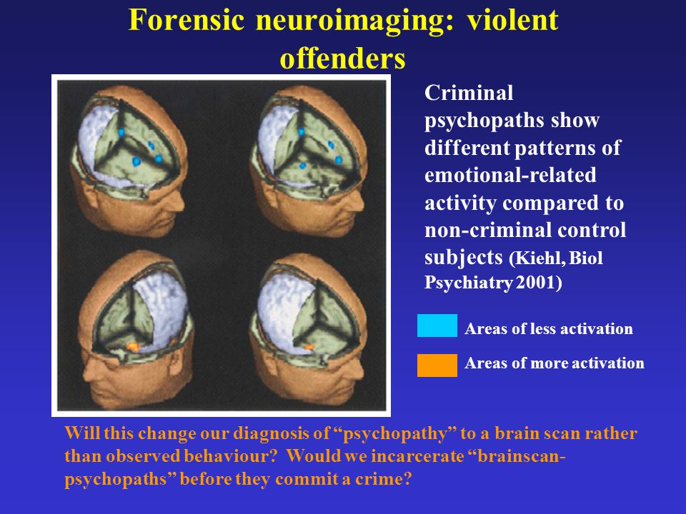 Forensic neuroimaging: violent offenders Criminal psychopaths show different patterns of emotional-related activity compared to non-criminal control s