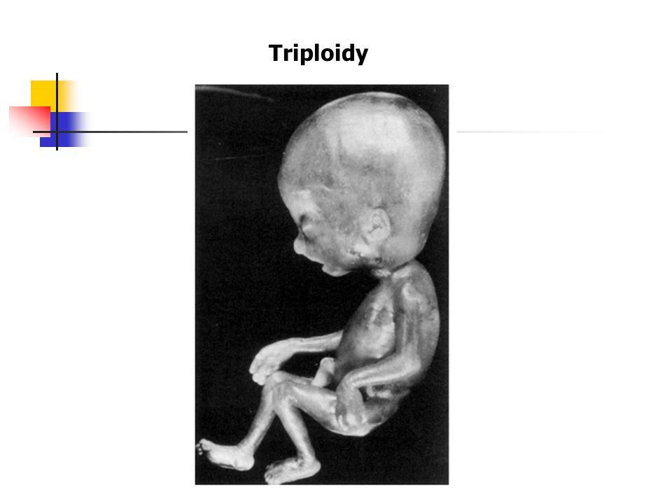 Triploidy