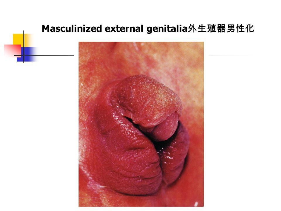Masculinized external genitalia 外生殖器男性化