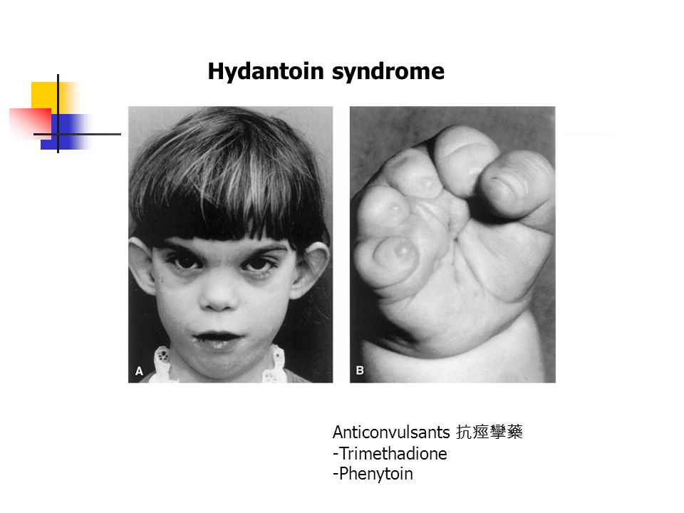 Anticonvulsants 抗痙攣藥 -Trimethadione -Phenytoin Hydantoin syndrome
