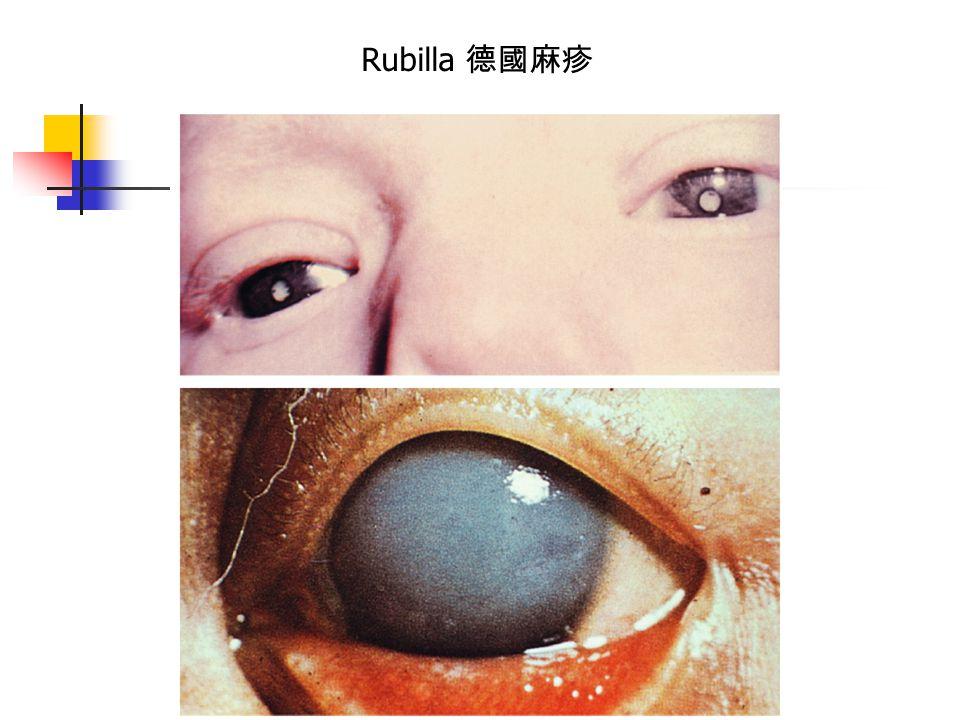 Rubilla 德國麻疹