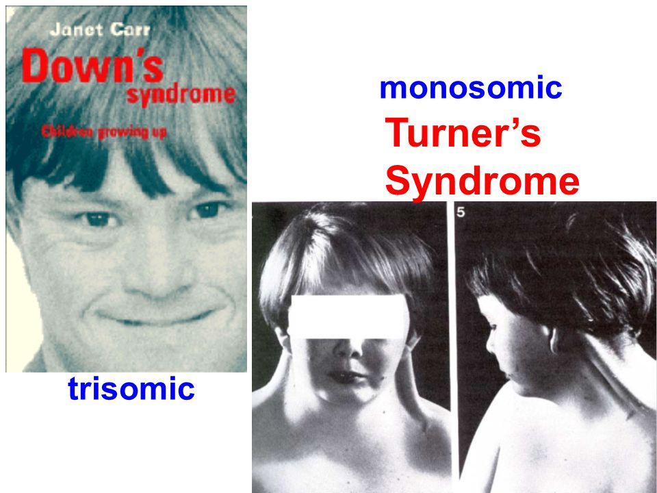 Turner's Syndrome trisomic monosomic