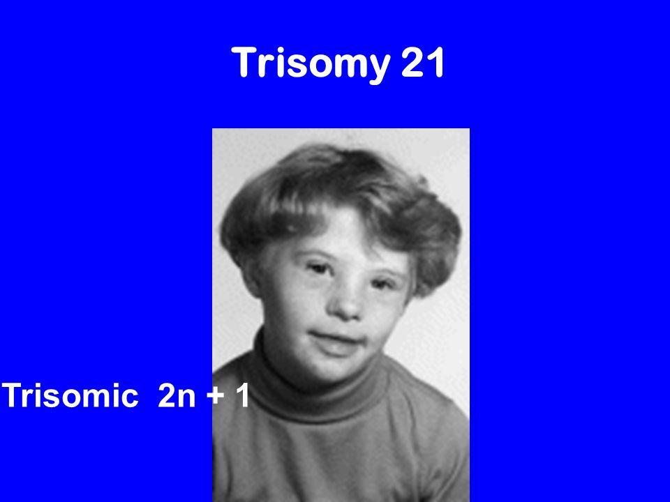 Turner's Syndrome trisomic monosomic