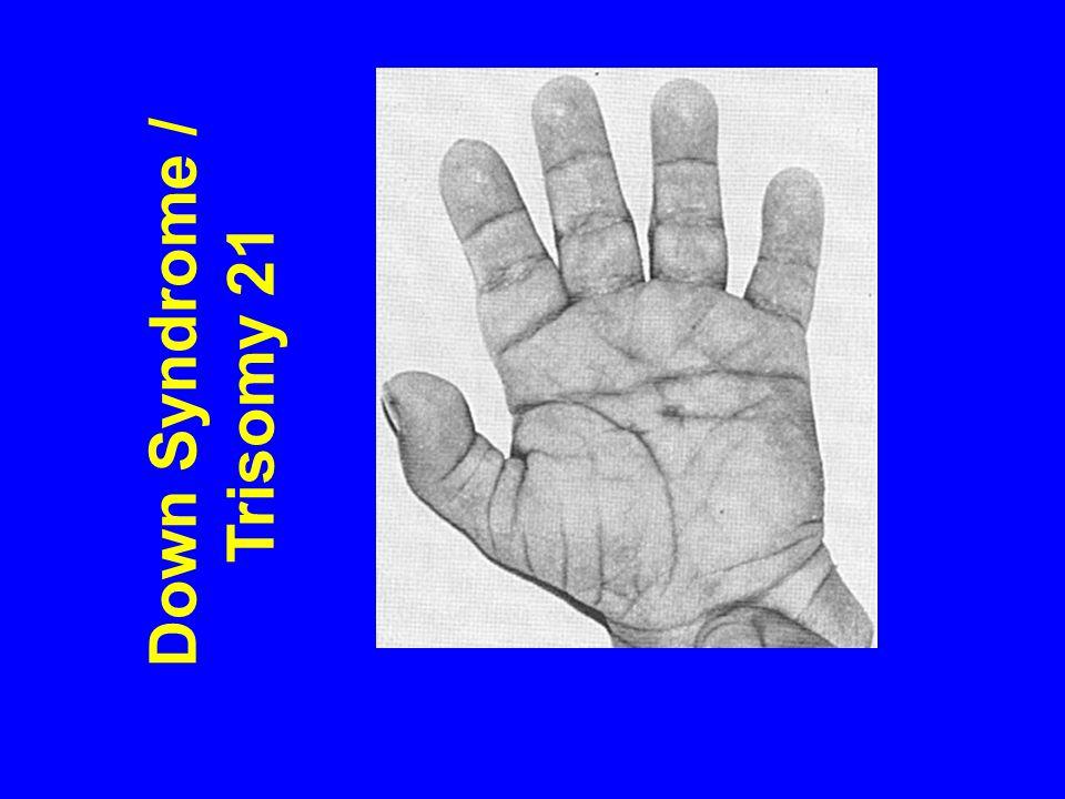 Trisomy 21 Trisomic 2n + 1