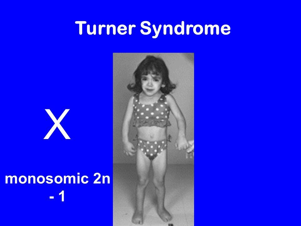 Down Syndrome / Trisomy 21