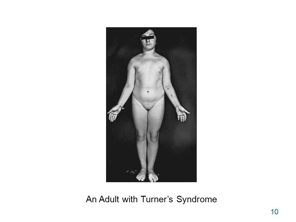 10 An Adult with Turner's Syndrome