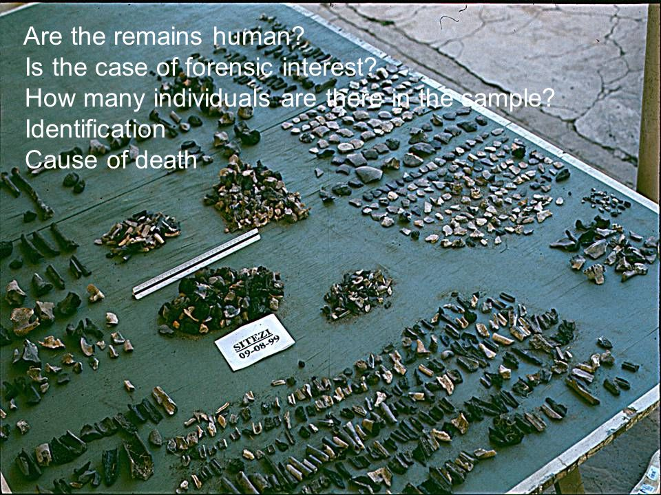Are the remains human.Is the case of forensic interest.