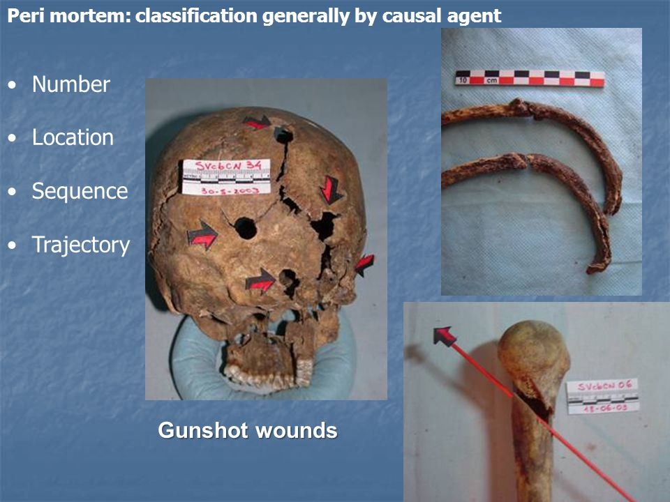 Number Location Sequence Trajectory Gunshot wounds Peri mortem: classification generally by causal agent