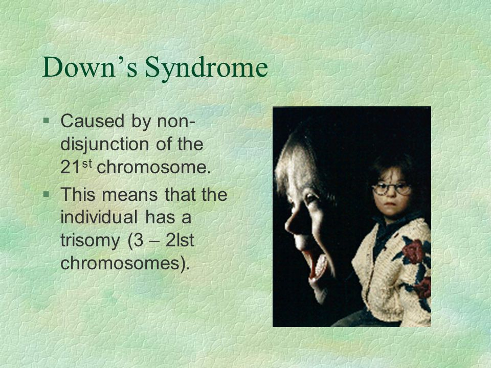 Down's Syndrome §Caused by non- disjunction of the 21 st chromosome. §This means that the individual has a trisomy (3 – 2lst chromosomes).