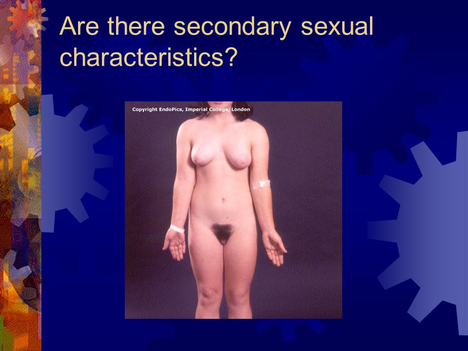Are there secondary sexual characteristics?
