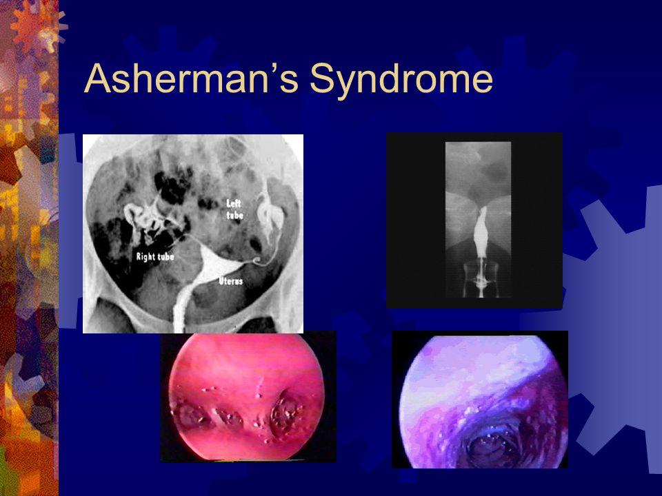 Asherman's Syndrome
