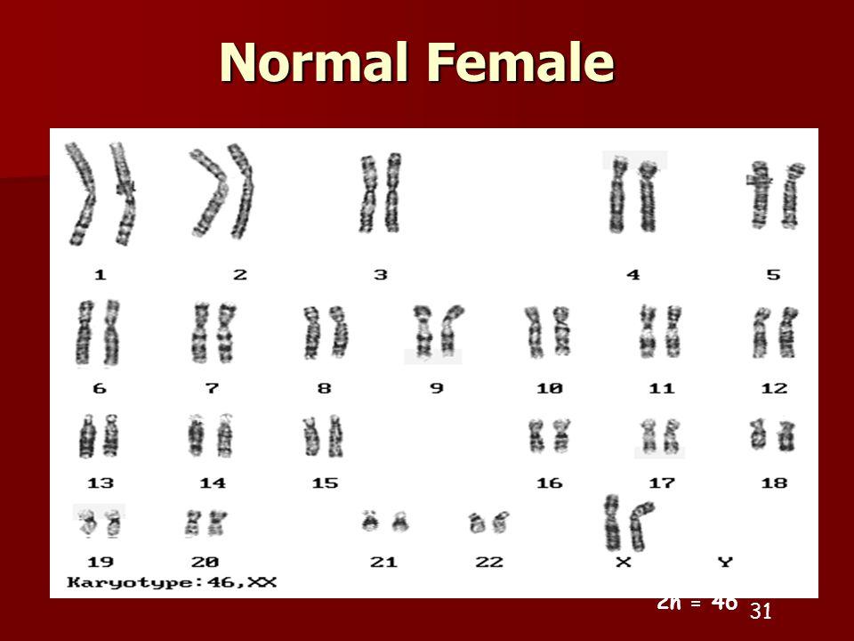 Normal Female 31 2n = 46