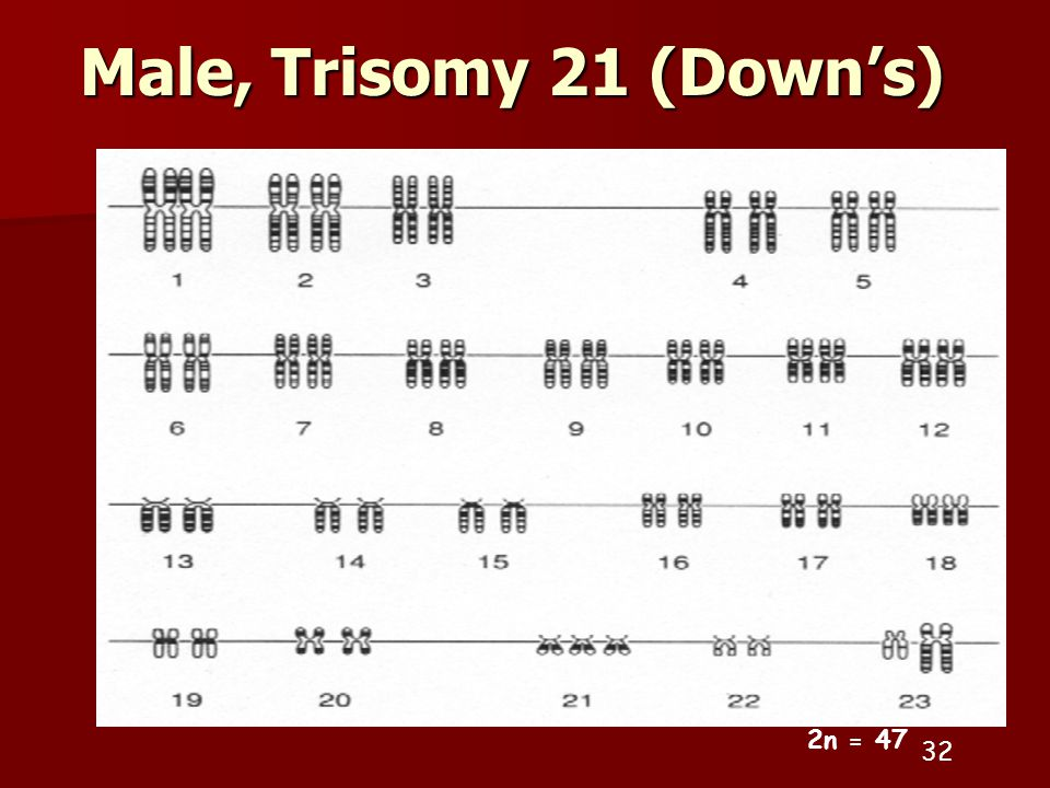 Male, Trisomy 21 (Down's) 32 2n = 47