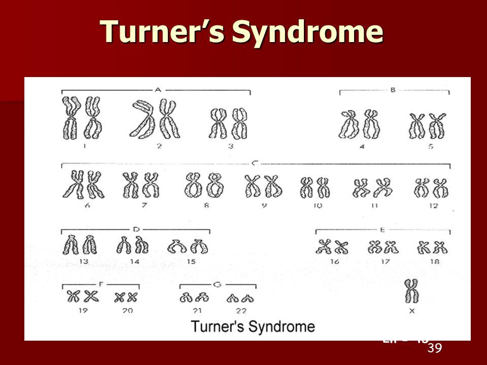 Turner's Syndrome 39 2n = 45