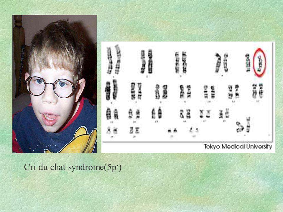 Cri du chat syndrome(5p - )