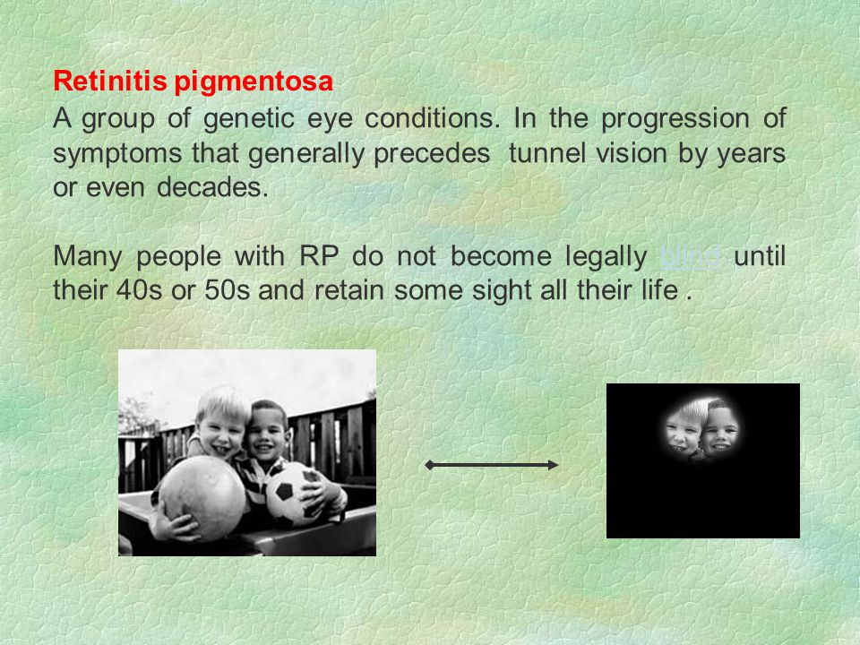 Retinitis pigmentosa A group of genetic eye conditions.