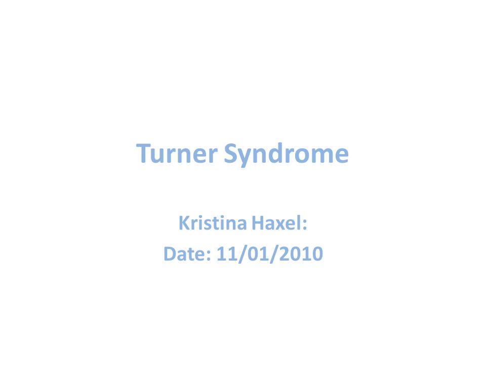 Turner Syndrome Kristina Haxel: Date: 11/01/2010