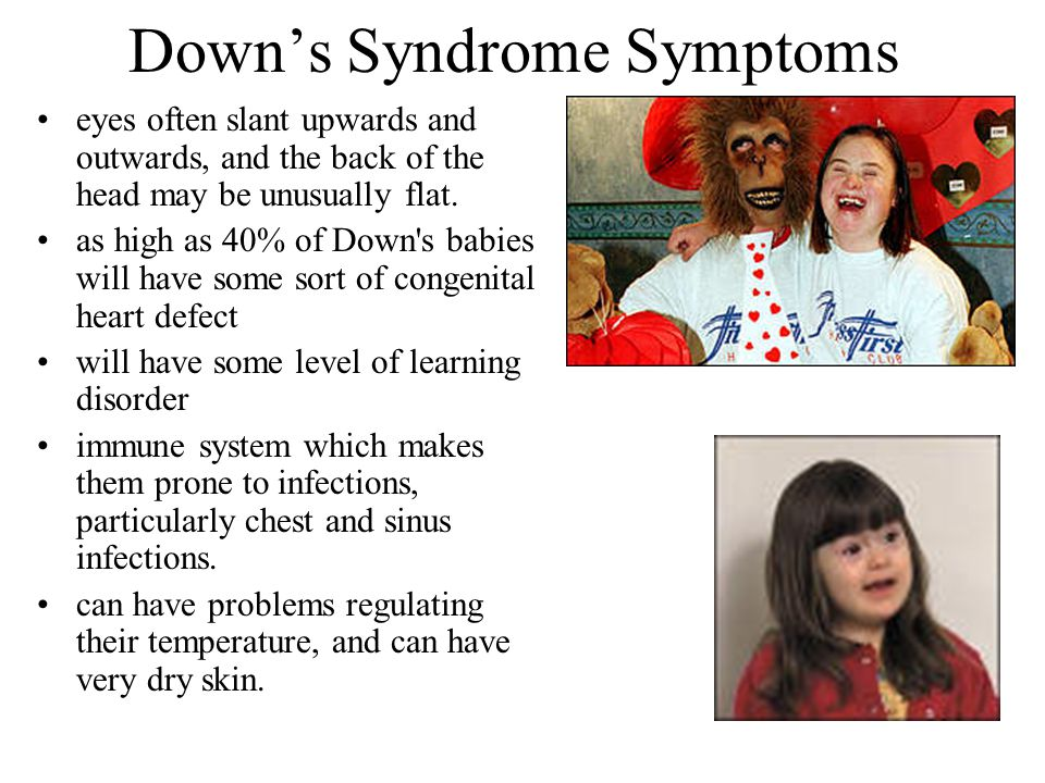 Down's Syndrome Symptoms eyes often slant upwards and outwards, and the back of the head may be unusually flat. as high as 40% of Down's babies will h