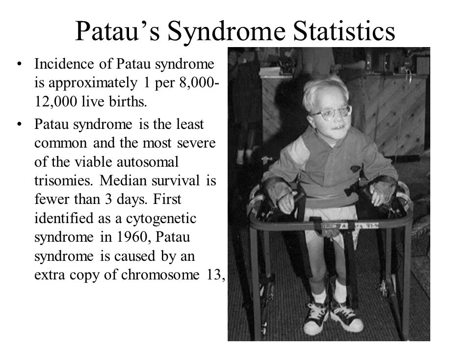 Patau's Syndrome Statistics Incidence of Patau syndrome is approximately 1 per 8,000- 12,000 live births. Patau syndrome is the least common and the m