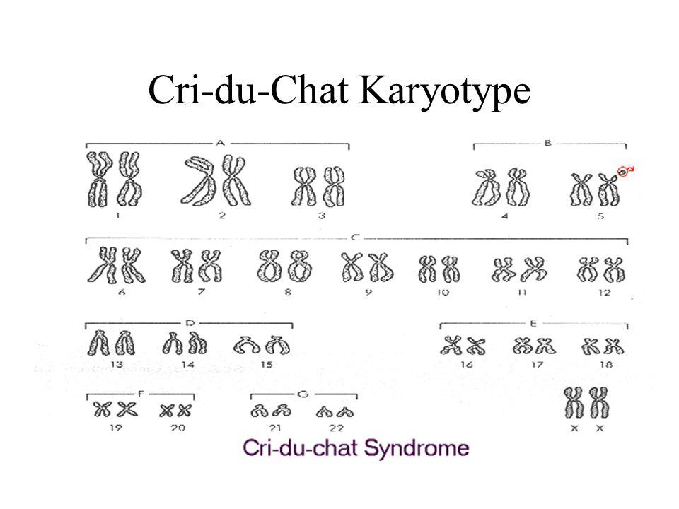 Cri-du-Chat Karyotype