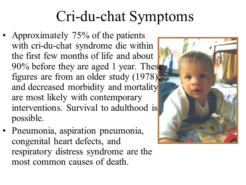 Cri-du-chat Symptoms Approximately 75% of the patients with cri-du-chat syndrome die within the first few months of life and about 90% before they are