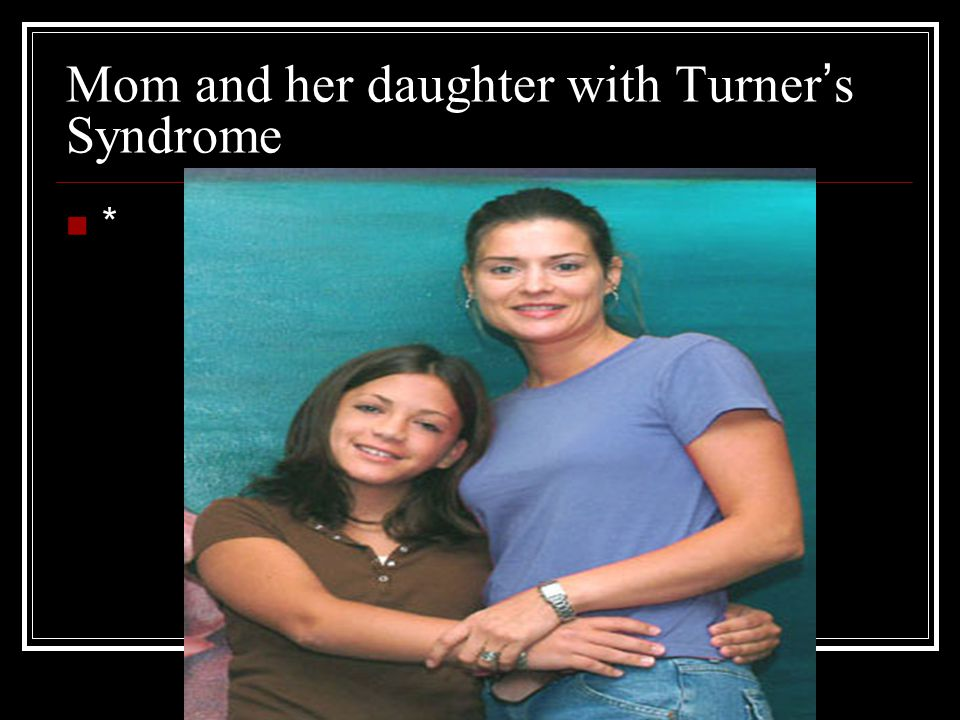 Mom and her daughter with Turner ' s Syndrome *