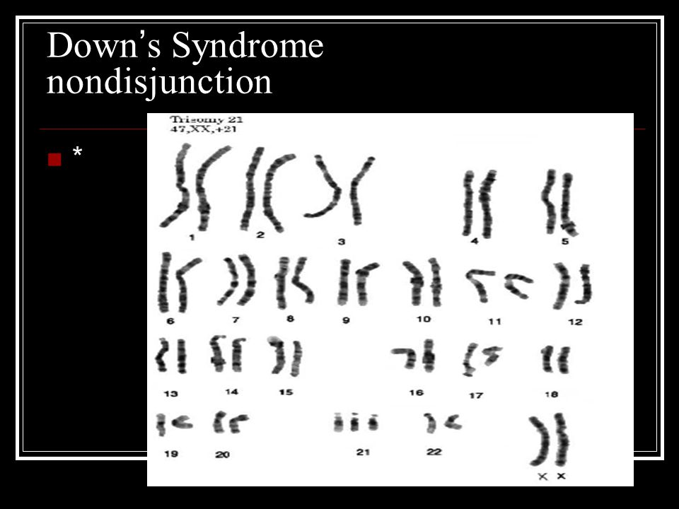 Down ' s Syndrome nondisjunction *