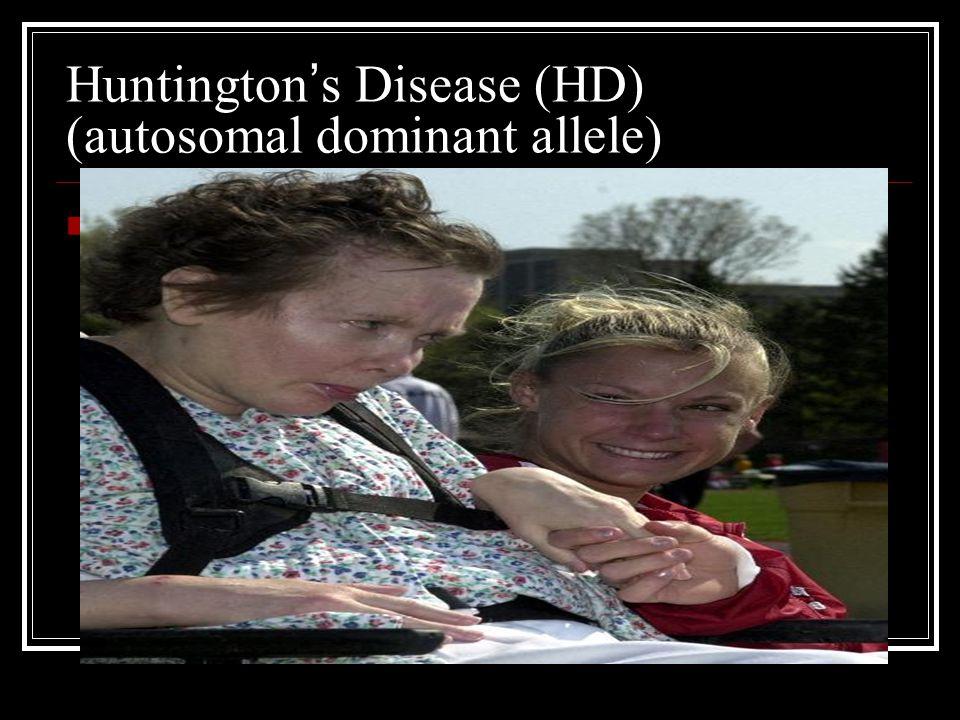 Huntington ' s Disease (HD) (autosomal dominant allele) *