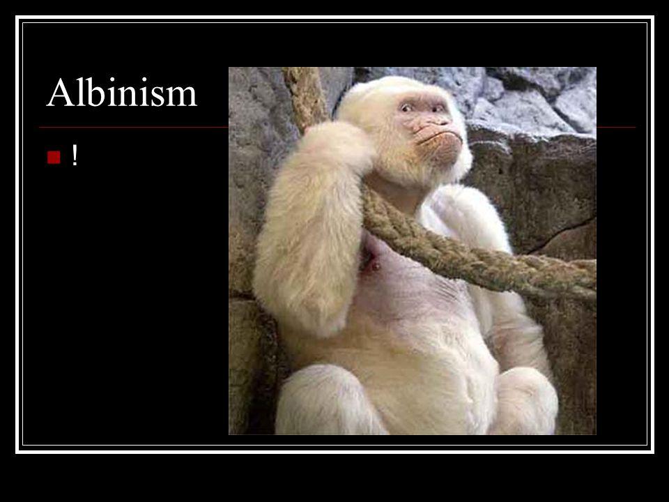 Albinism !