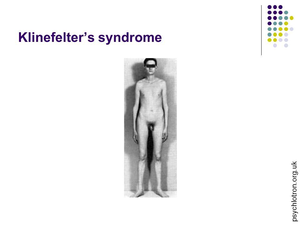 Klinefelter's syndrome psychlotron.org.uk