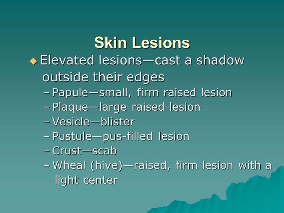 Skin Lesions  Elevated lesions—cast a shadow outside their edges outside their edges –Papule—small, firm raised lesion –Plaque—large raised lesion –Vesicle—blister –Pustule—pus-filled lesion –Crust—scab –Wheal (hive)—raised, firm lesion with a light center light center