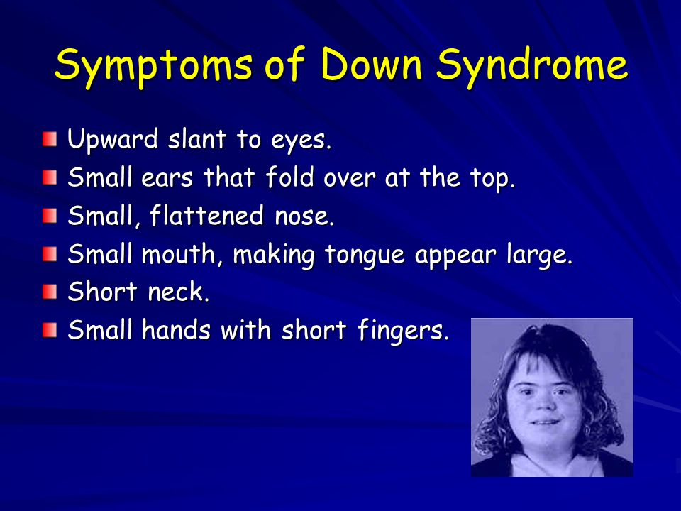 Symptoms of Down Syndrome Upward slant to eyes. Small ears that fold over at the top. Small, flattened nose. Small mouth, making tongue appear large.